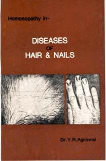 Diseases of Hair & Nails/Y.R. Agrawal