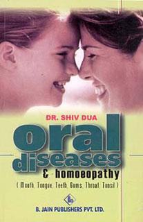Oral diseases homoeopathy/Shiv Dua