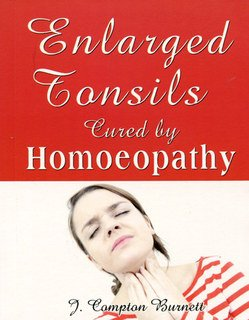 Enlarged Tonsils Cured by Homeopathy, James Compton Burnett