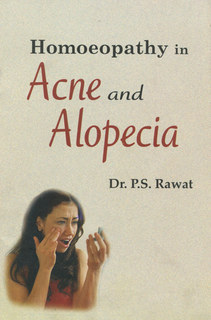 Homoeopathy in Acne and Alopecia/P.S. Rawat