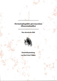 Dermatophagoides pteronyssinus  (Hausstaubmilbe)/Karl-Josef Müller